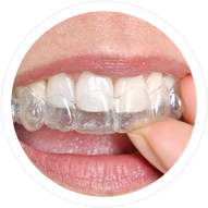 Invisalign Offered By Shafer Orthodontics