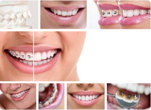 Mahomet I L Favorite Orthodontist Discusses The Evolution Of Orthodontics